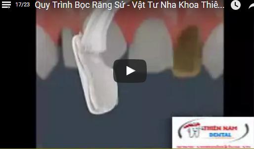 Video Quy Trình Bọc Răng Sứ