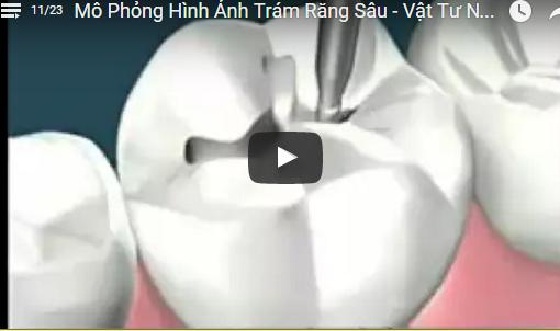 Video Mô Phỏng Hình Ảnh Trám Răng Sâu