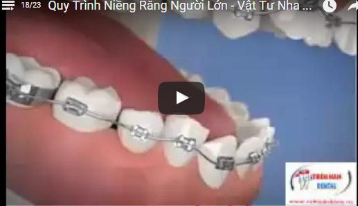 Video Quy Trình Niềng Răng Người Lớn