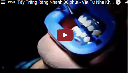 Video Tẩy Răng Nhanh 30 Phút