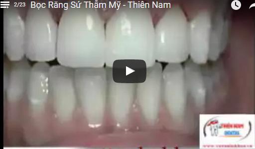 Video Bọc Răng Sứ Thẩm Mỹ