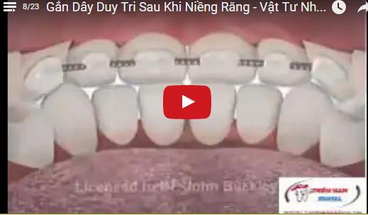 Video Gắn Dây Duy Trì Sau Khi NIềng Răng