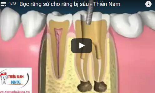 Video Bọc Răng Sứ Cho Răng Bị Sâu